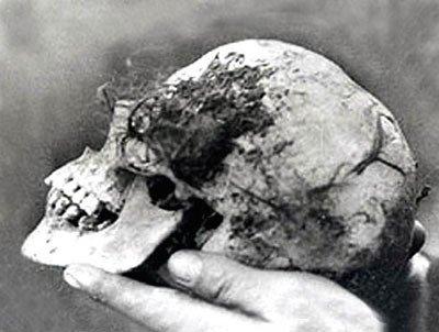Neatpažintos moters kaukolė dar turėjo kelis plaukų kuokštus