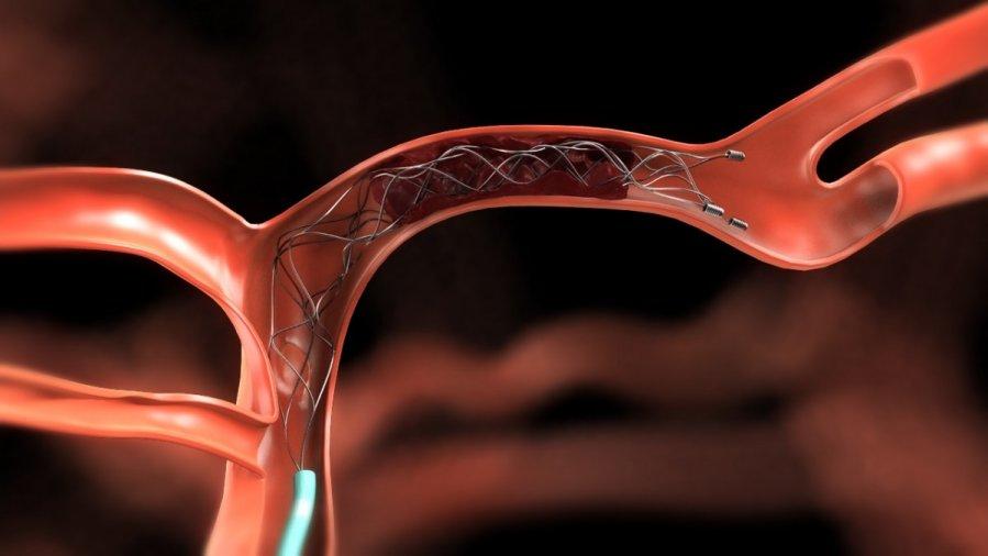 vegetacinė kraujagyslių distonija sergant hipertenzija