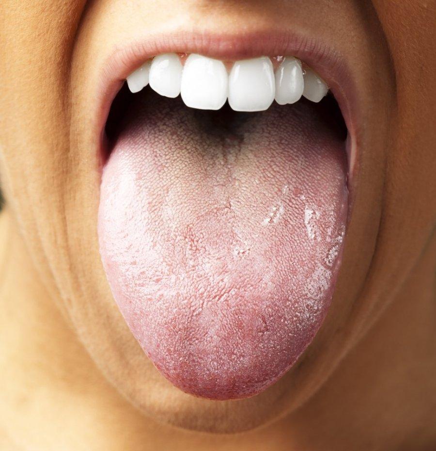 Ar burnos grybelis užkrečiamas