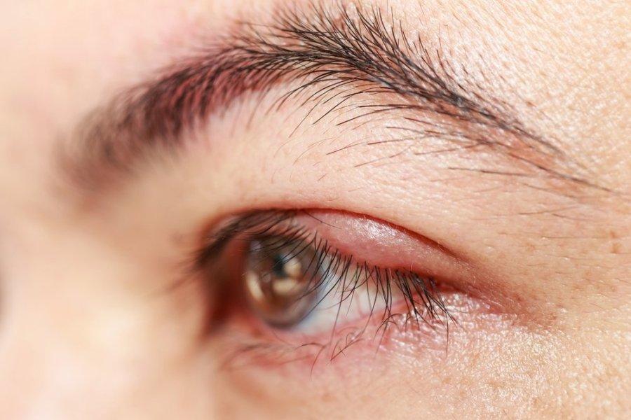 akių vokų riebalų nuostoliai)