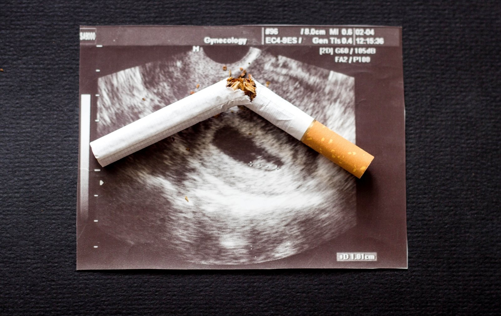 daro įtaką rūkymui dėl hipertenzijos