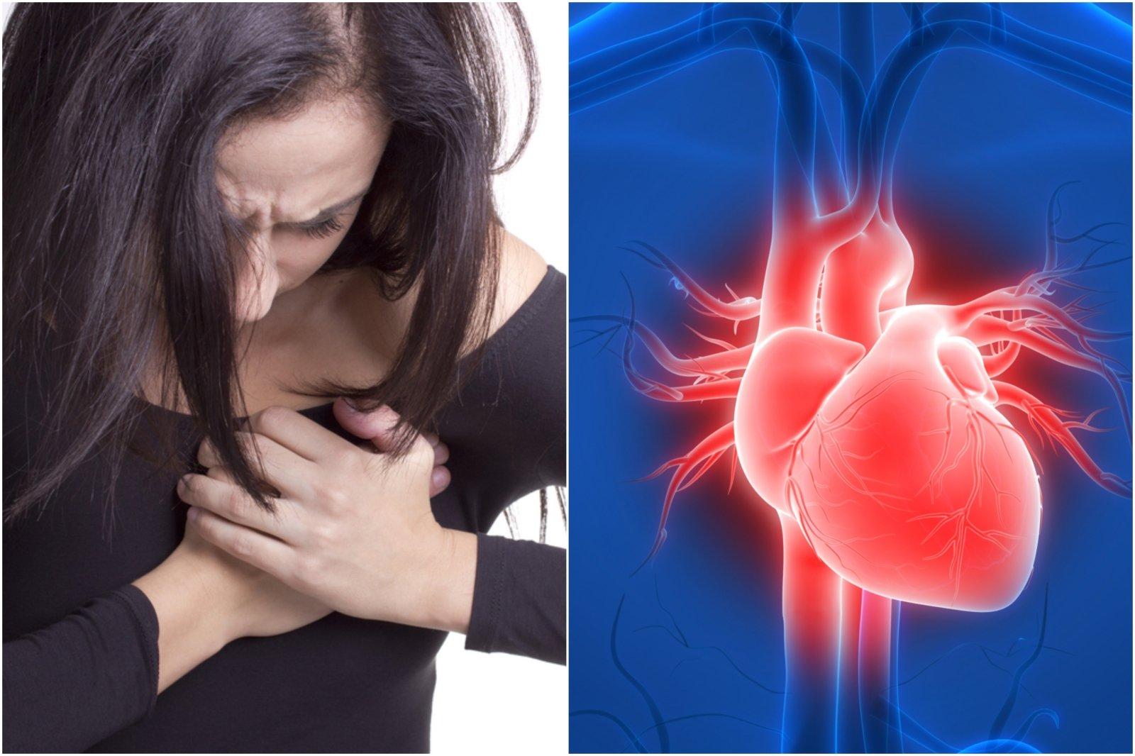 Širdies ydos - Vaiko Širdies Asociacija