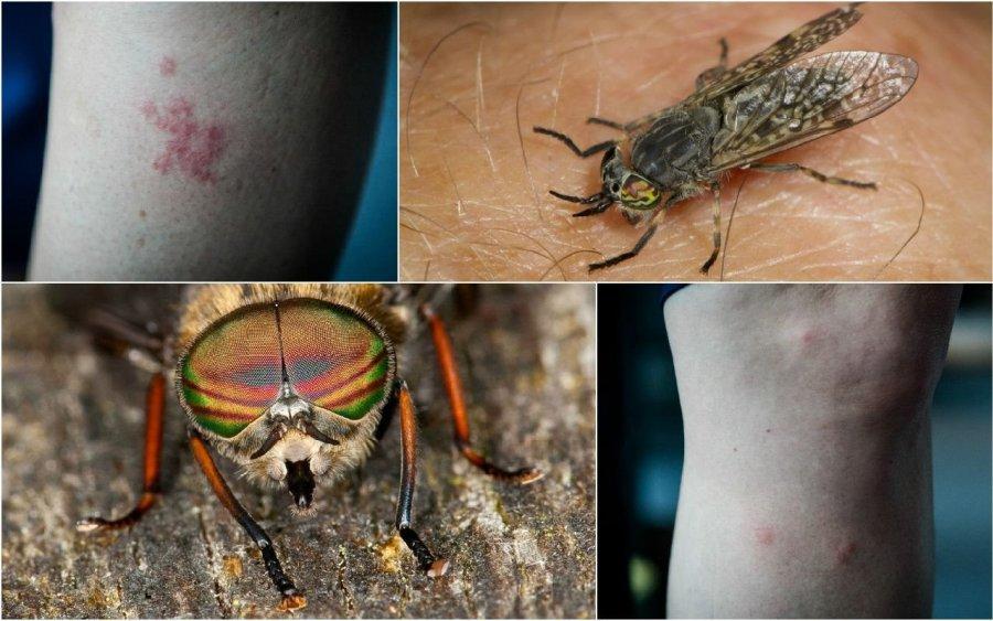 Vabzdžiai nuo sąnarių skausmo
